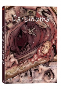Carcinoma Cover